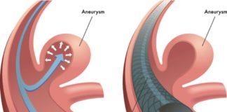 Aneurismi cerebrali e stent flow-diverter_21secolo_emanuelemarino